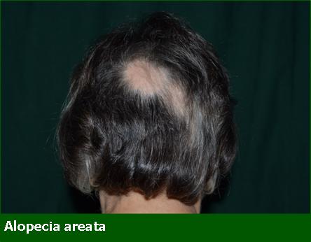 Alopecia Areata - Professione Farmacia