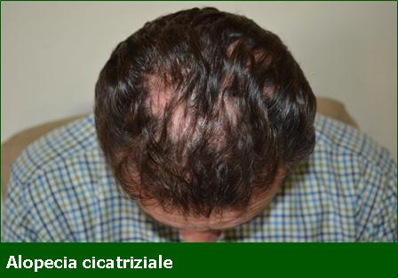 Alopecia Cicatriziale - Professione Farmacia
