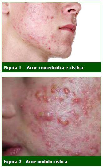 L'acne, indipendentemente dalla sua gravità, costituisce un problema che coinvolge non solo l'aspetto della salute, ma anche la sfera psicologica e sociale